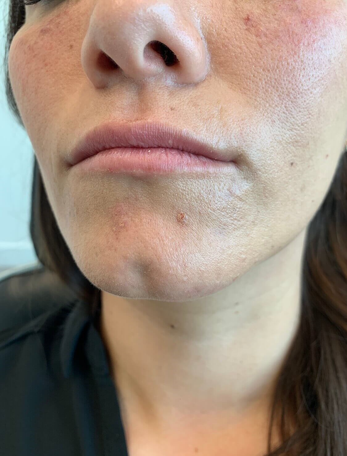 Lip Augmentation Restylane Before Restylane Defyne