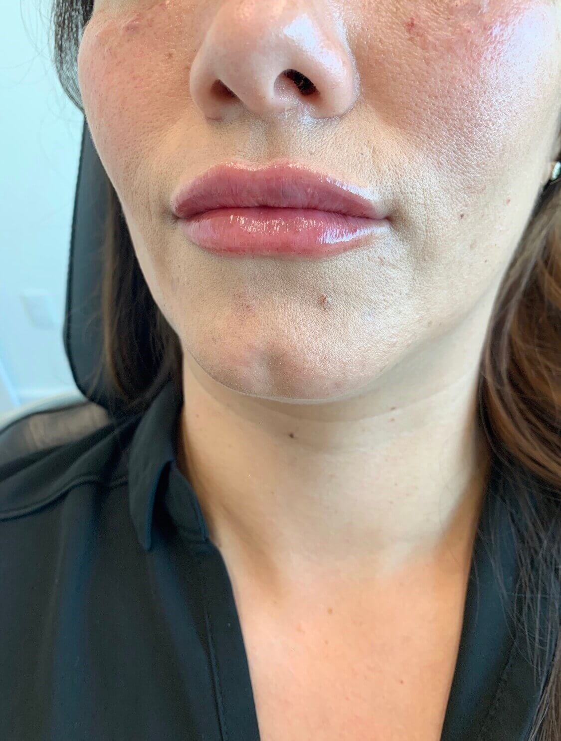 Lip Augmentation Restylane After Restylane Defyne