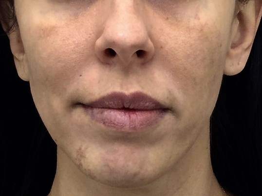 Chemical Peel Before