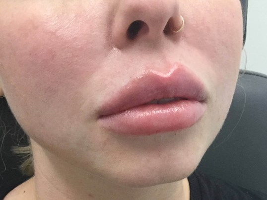 Lip Augmentation After Lip Filler
