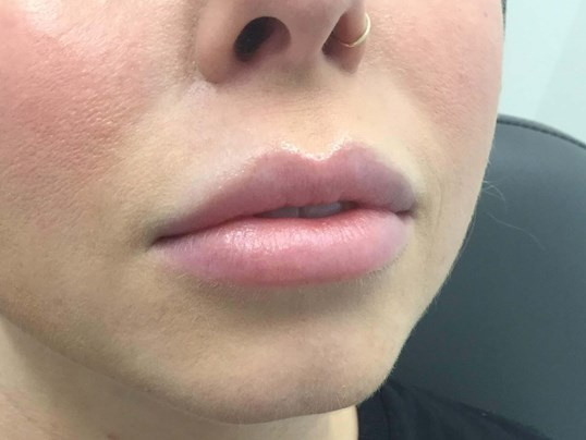 Lip Augmentation Before Lip Filler