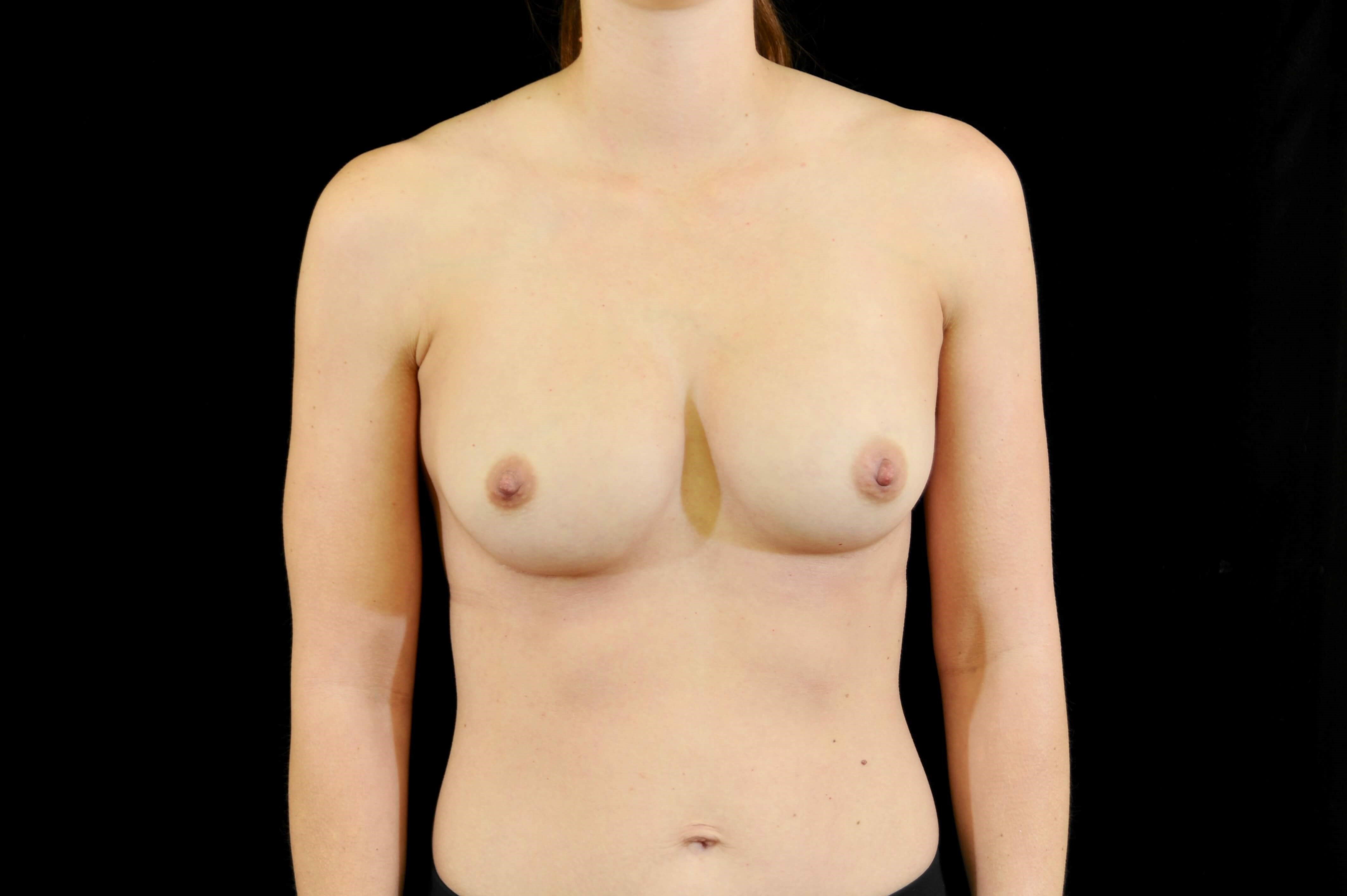 Breast Implant Revision Before Implant Replacement