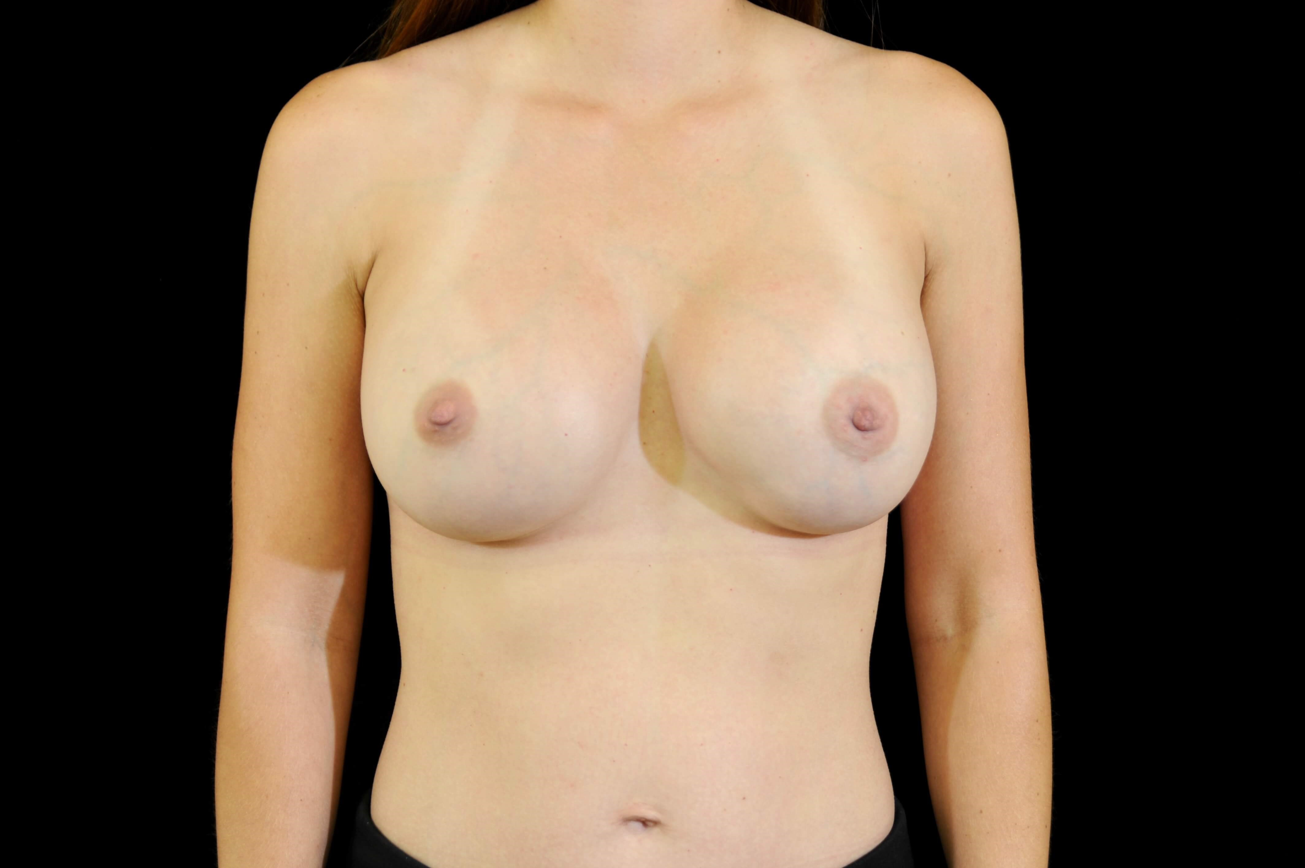 Breast Implant Revision After Implant Replacement