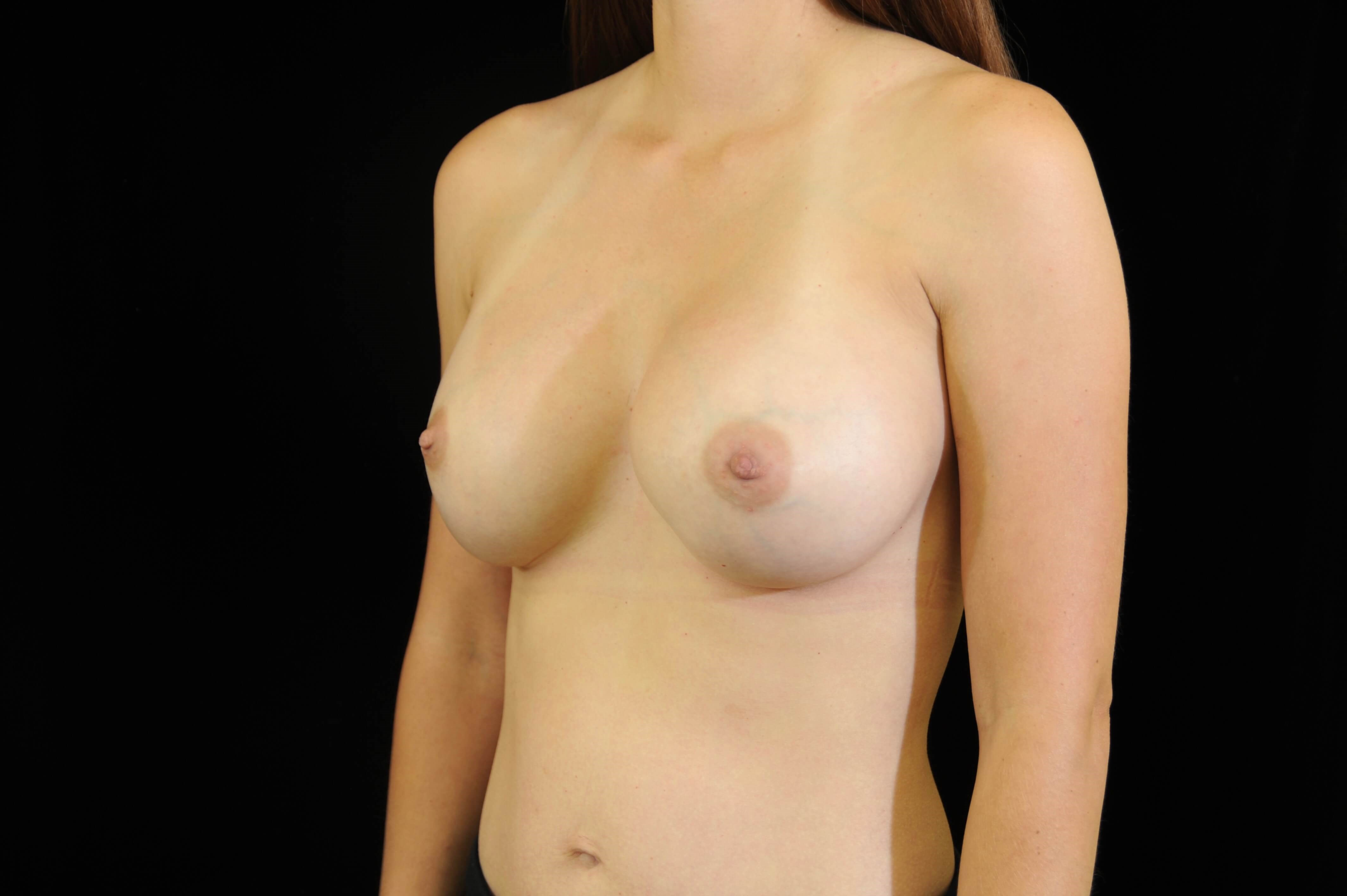 Breast Implant Revision After Breast Revision