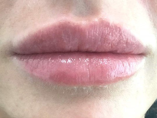 Lip Augmentation After Lip Augmentation