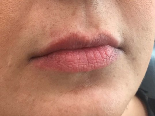 Lip Augmentation Before Lip Augmentation