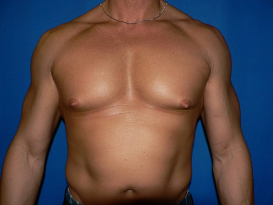 Gynecomastia Denver Before