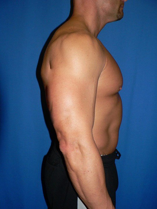 Gynecomastia Denver After