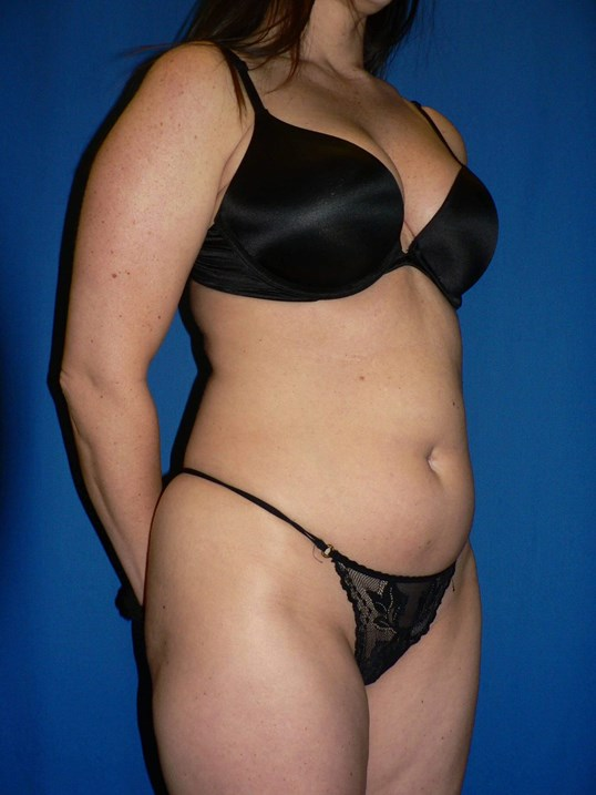 Liposuction Denver VASER Before