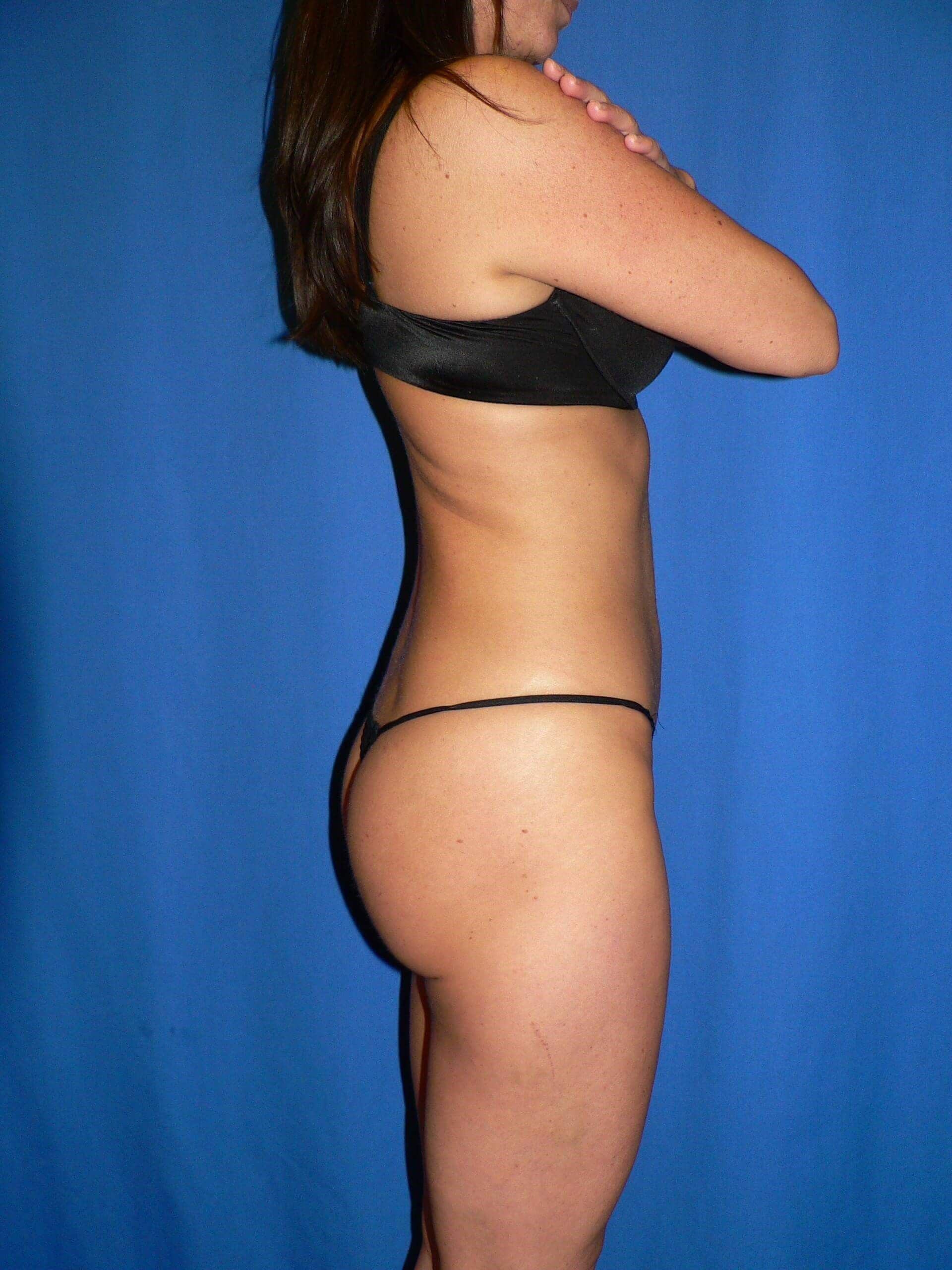 Liposuction Denver VASER After