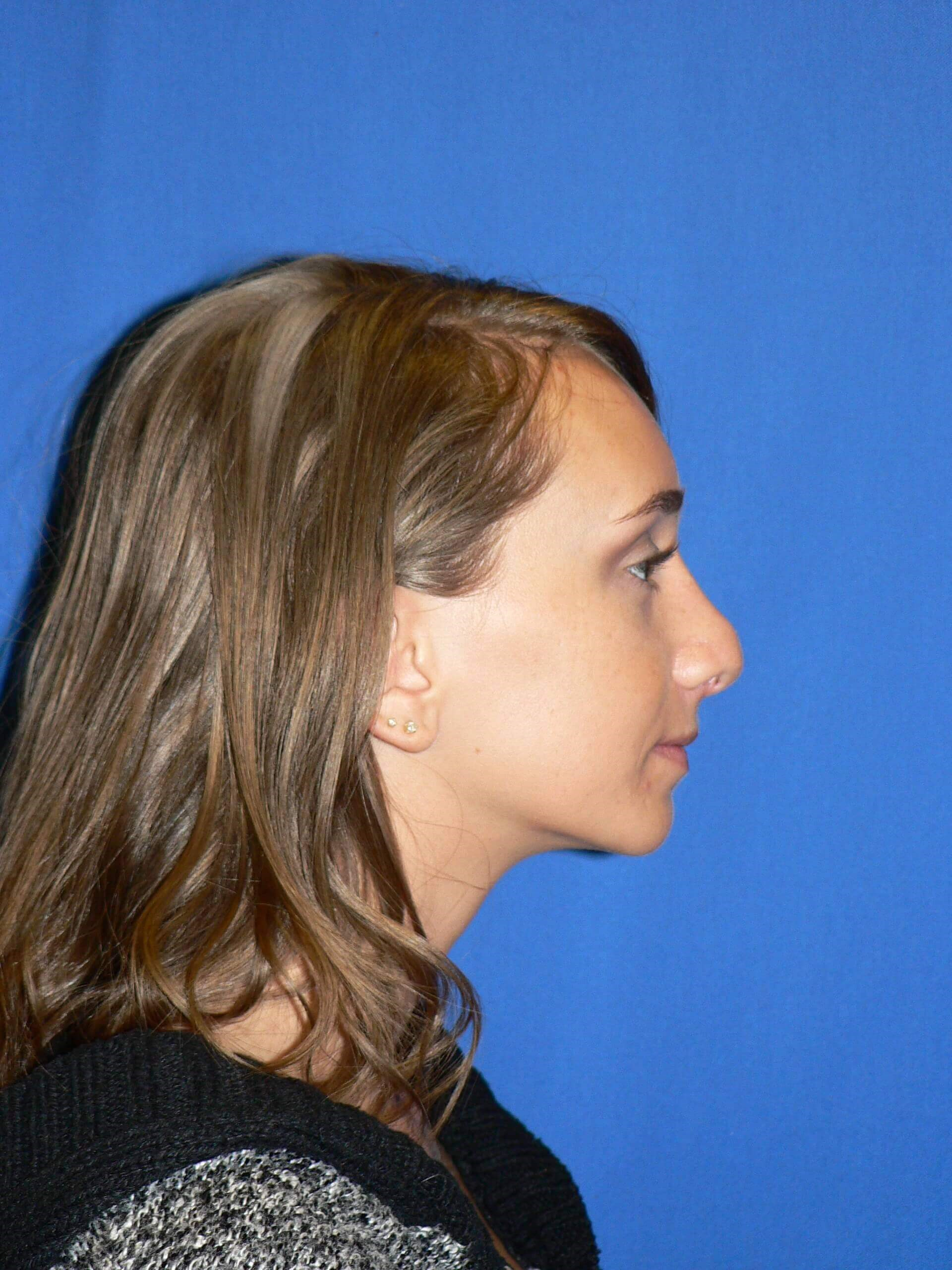 Revision rhinoplasty - Denver Before