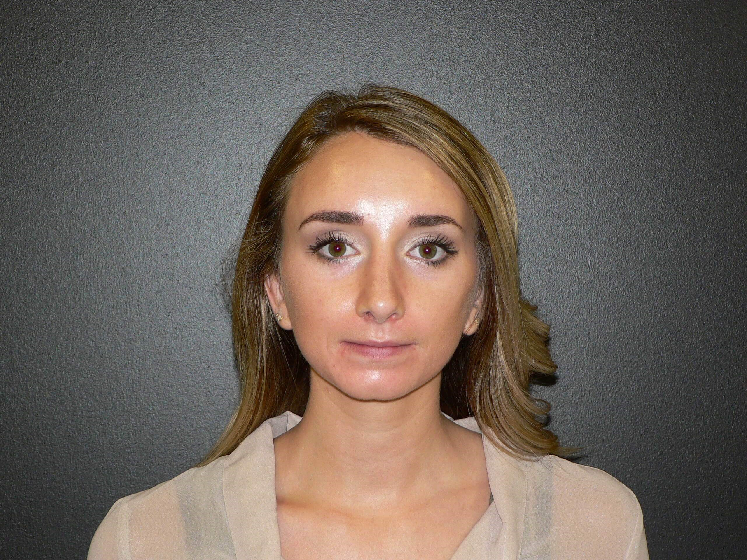 Revision rhinoplasty - Denver After