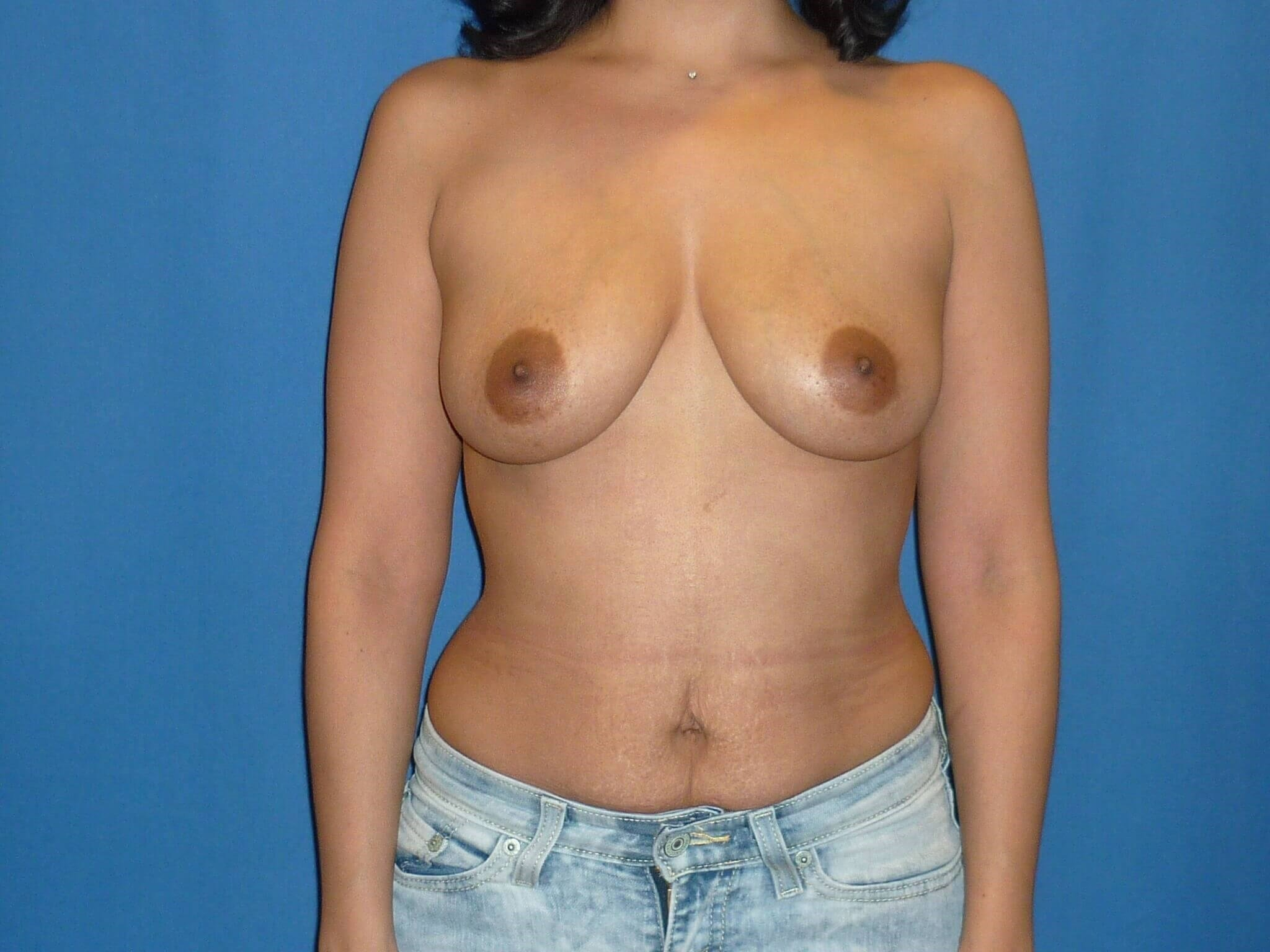 Breast augmentation - Denver Before
