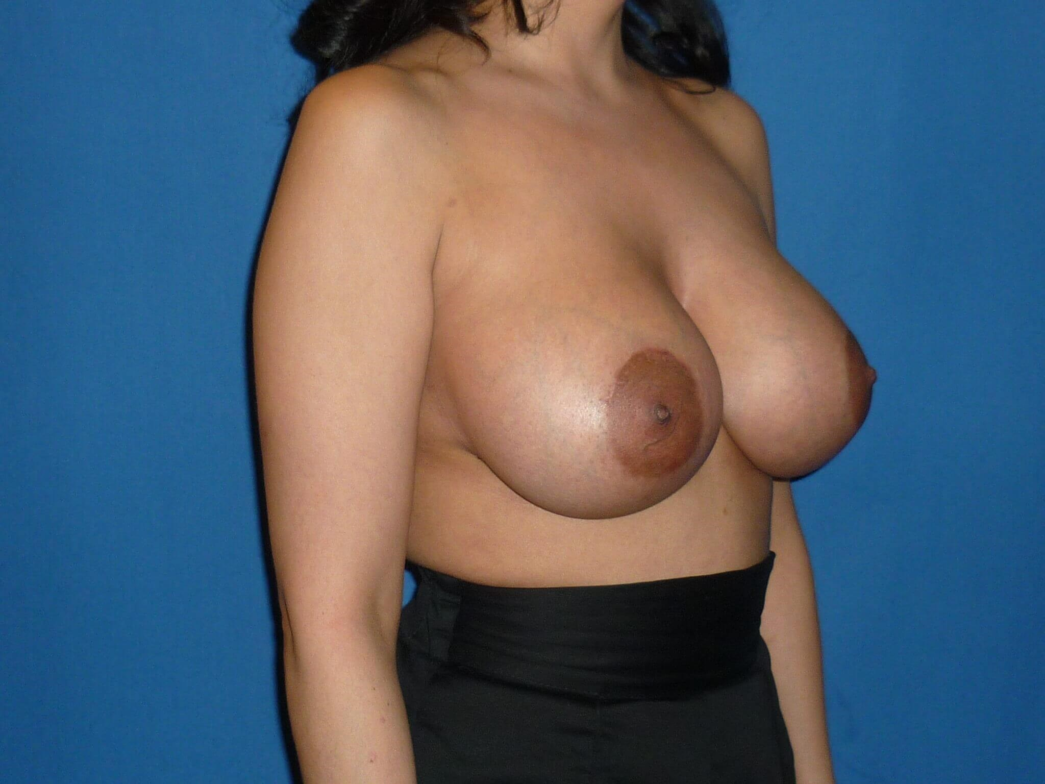 Breast augmentation - Denver After