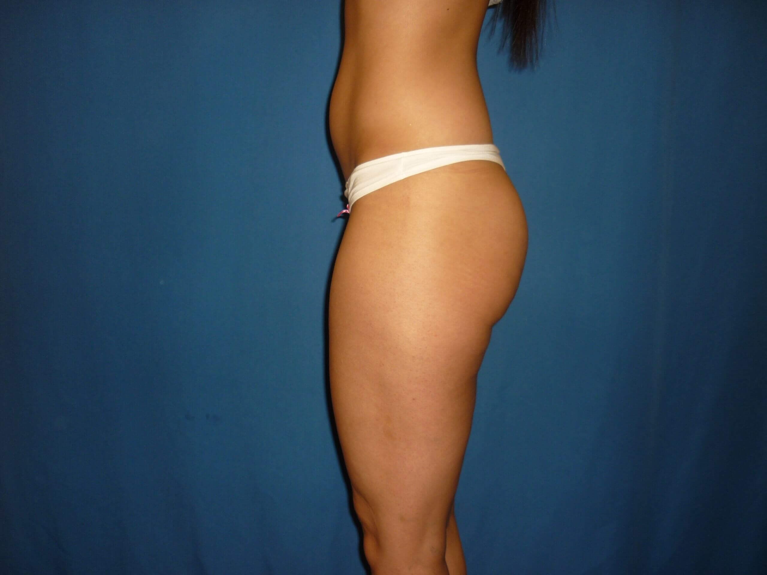 Butt implants - Denver - Shah Before