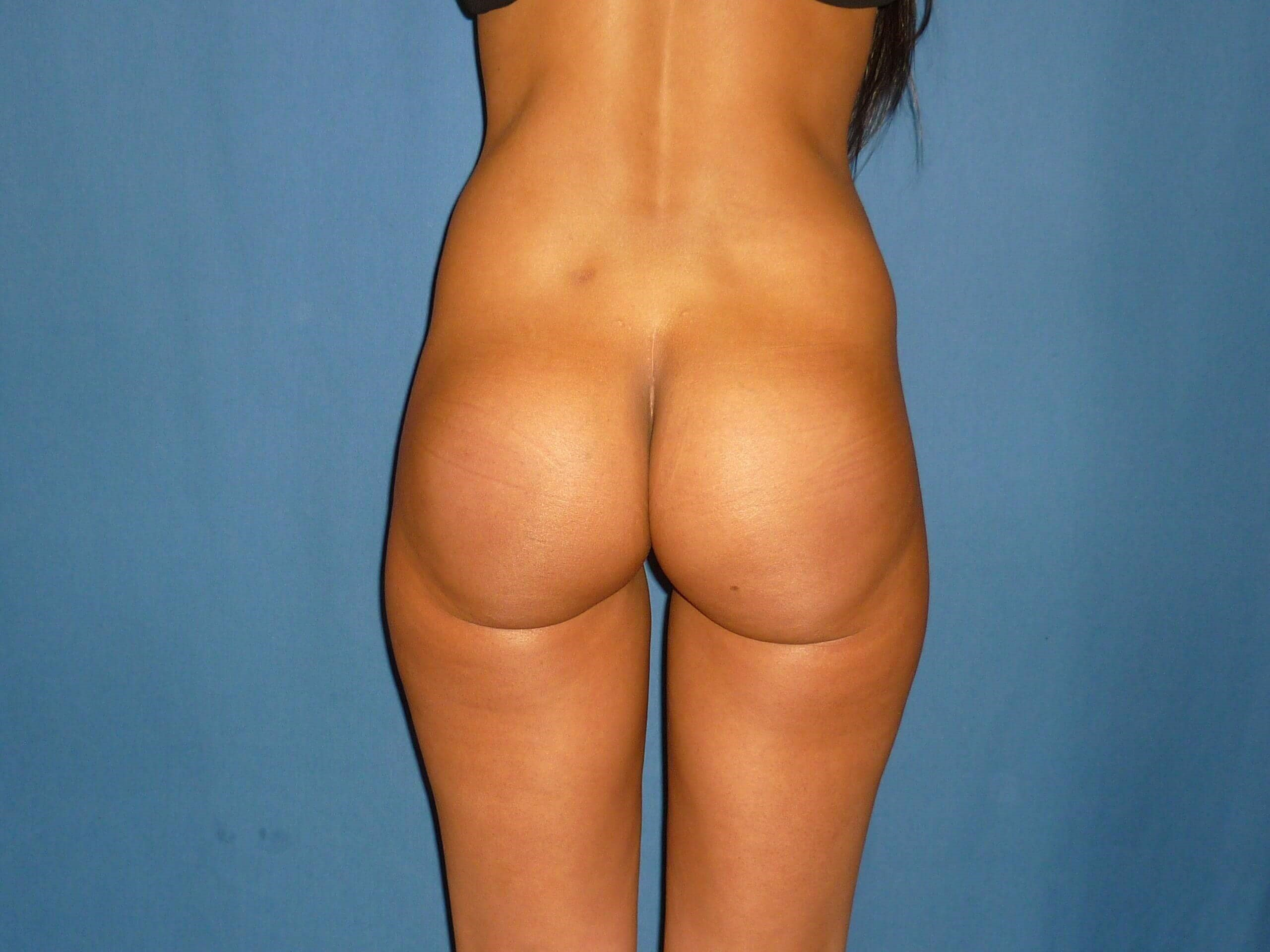 Butt implants - Denver - Shah After