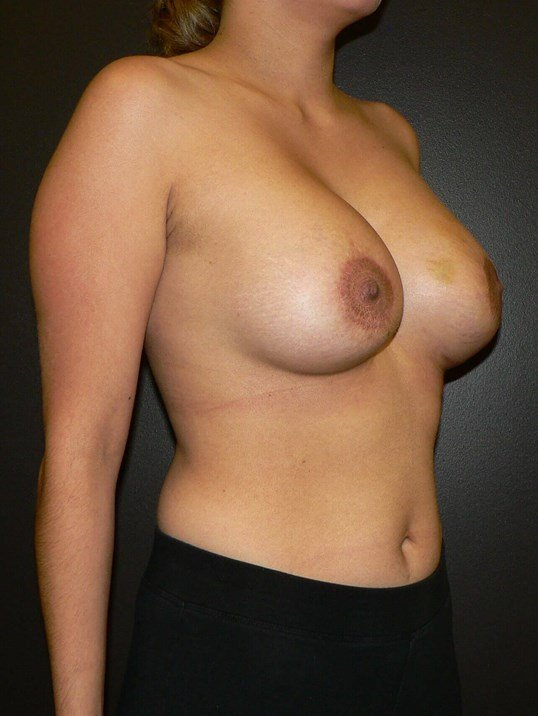 Breast Implants with Mastopexy After