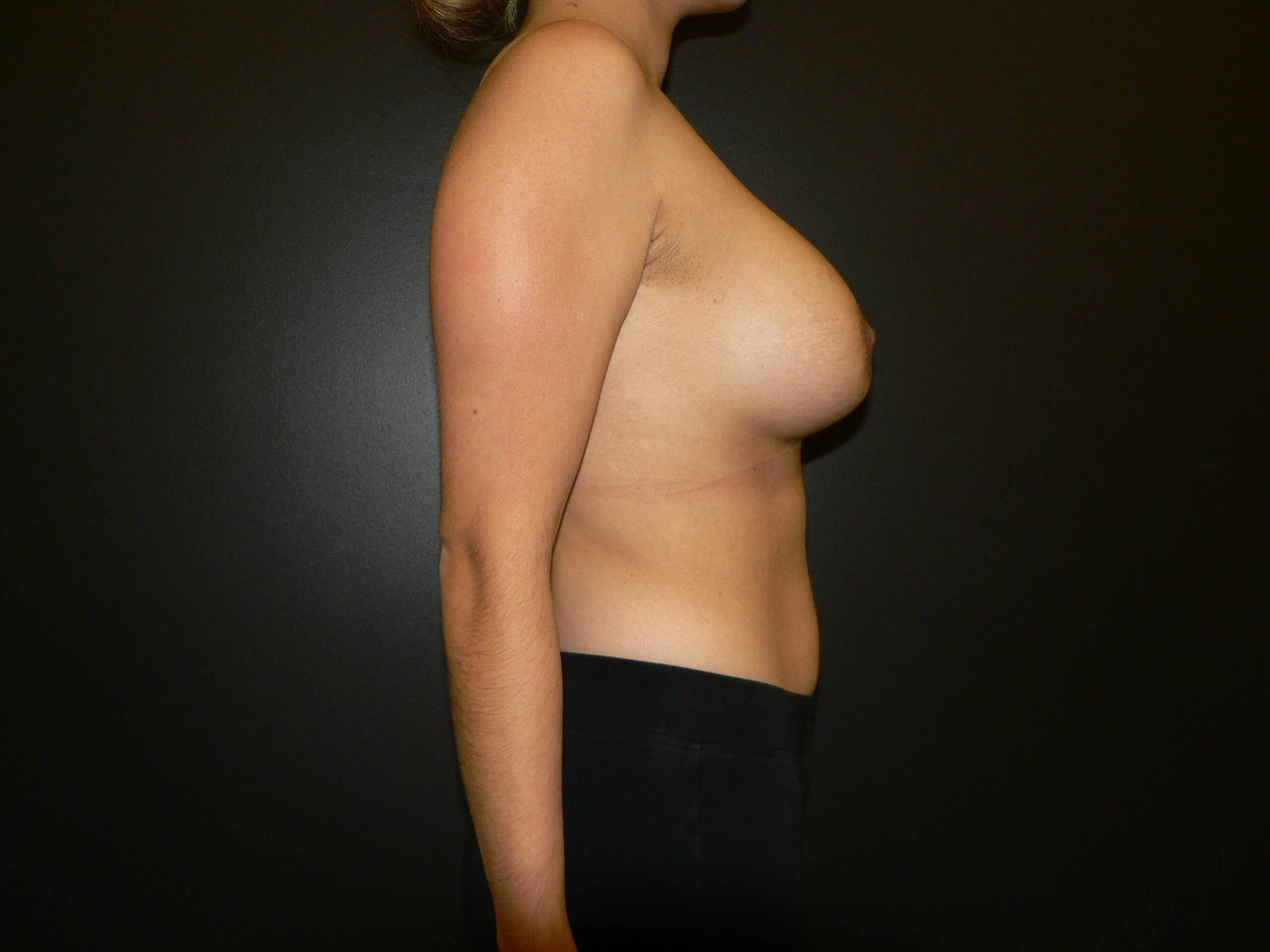 Breast Implants and Lifting After