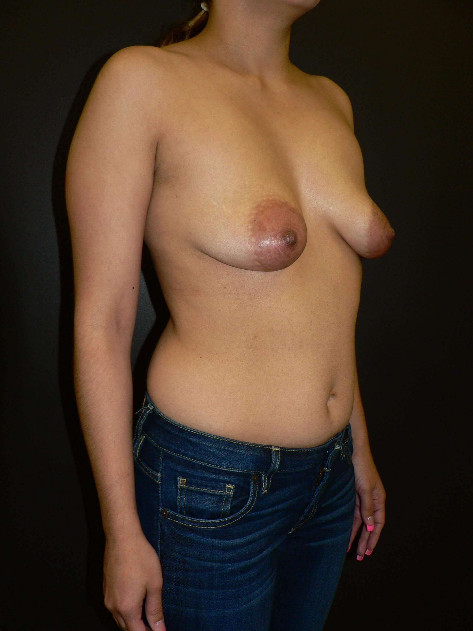 Breast Implants with Mastopexy Before
