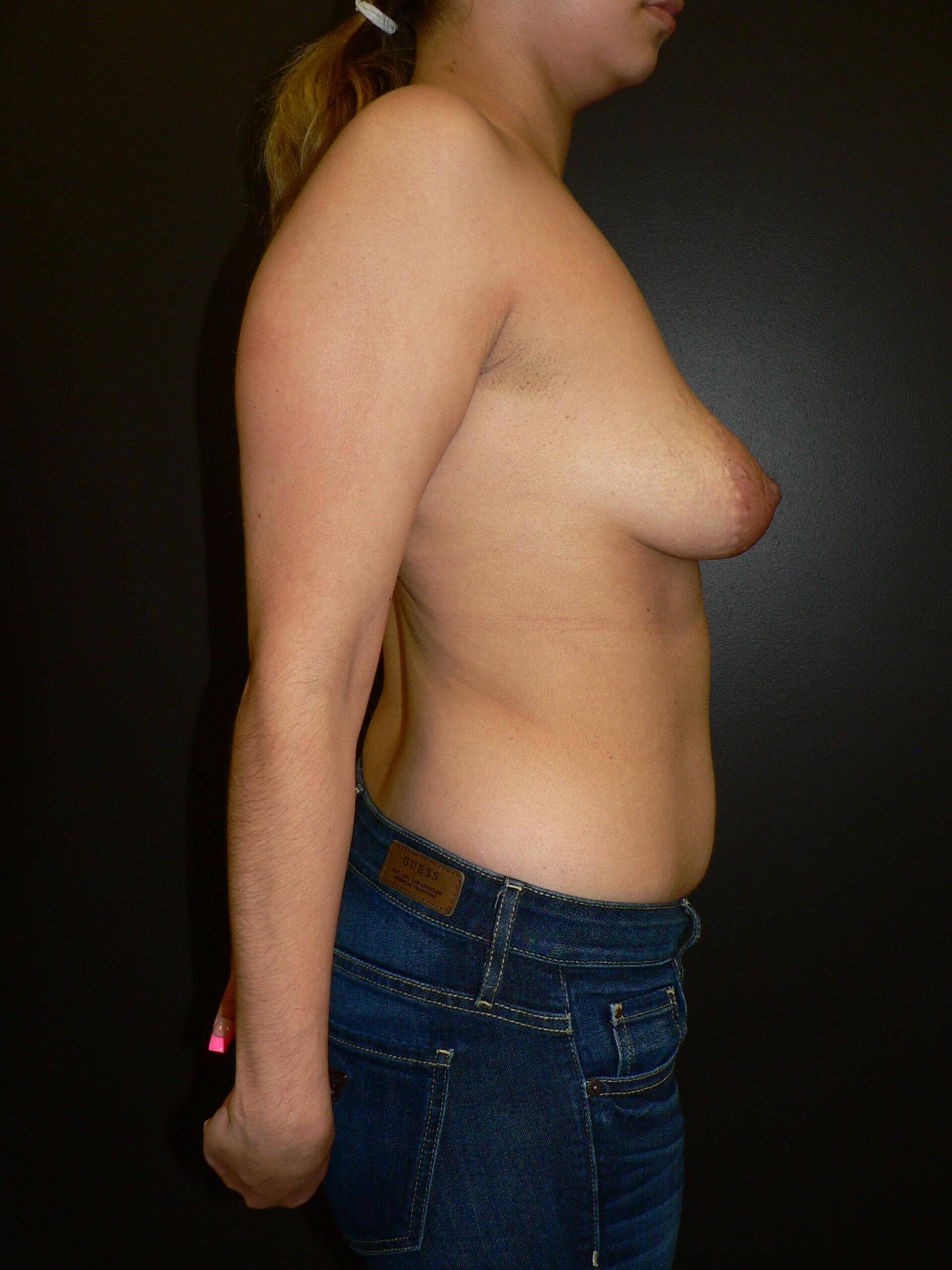 Breast Implants and Lifting Before