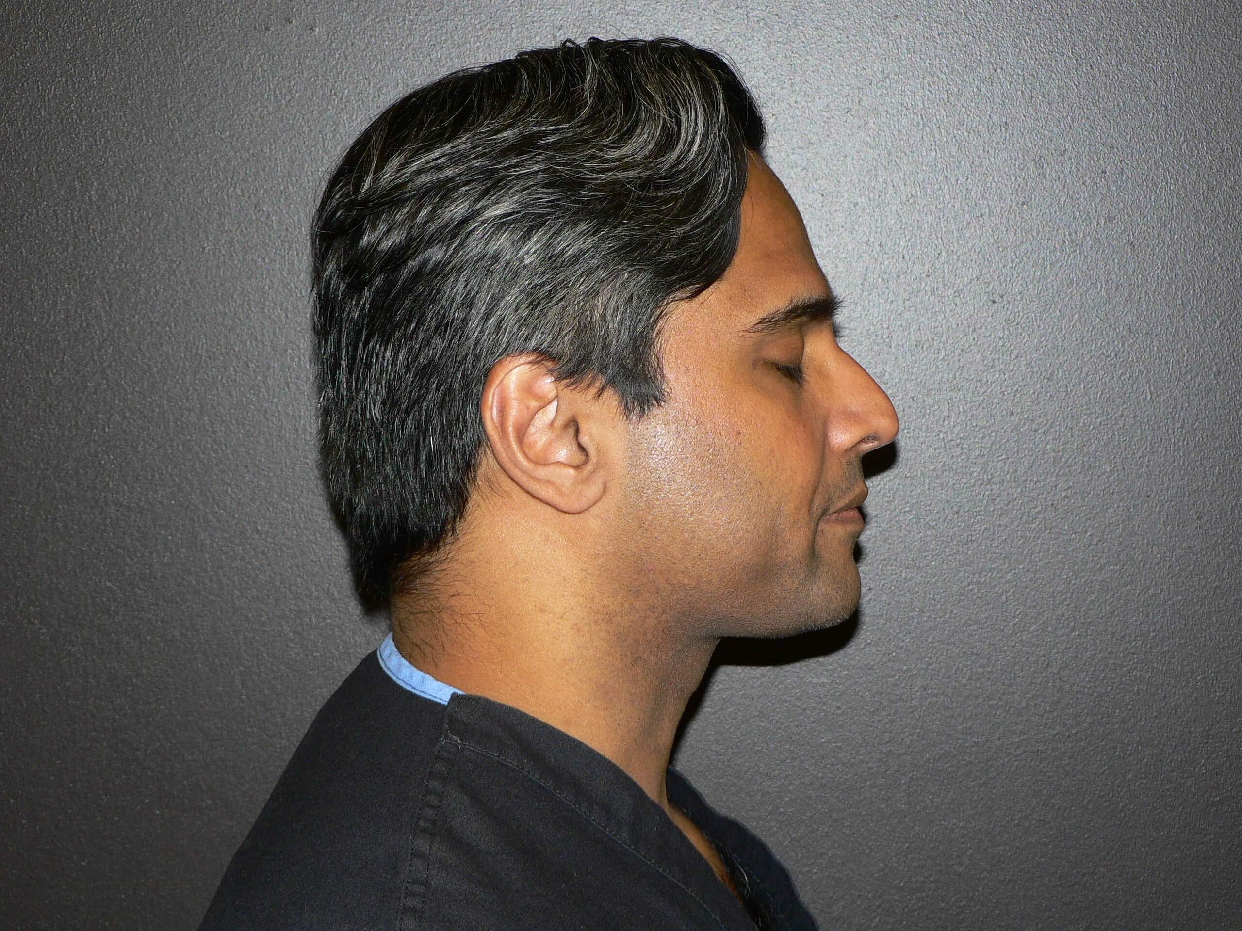 Kybella - Denver After