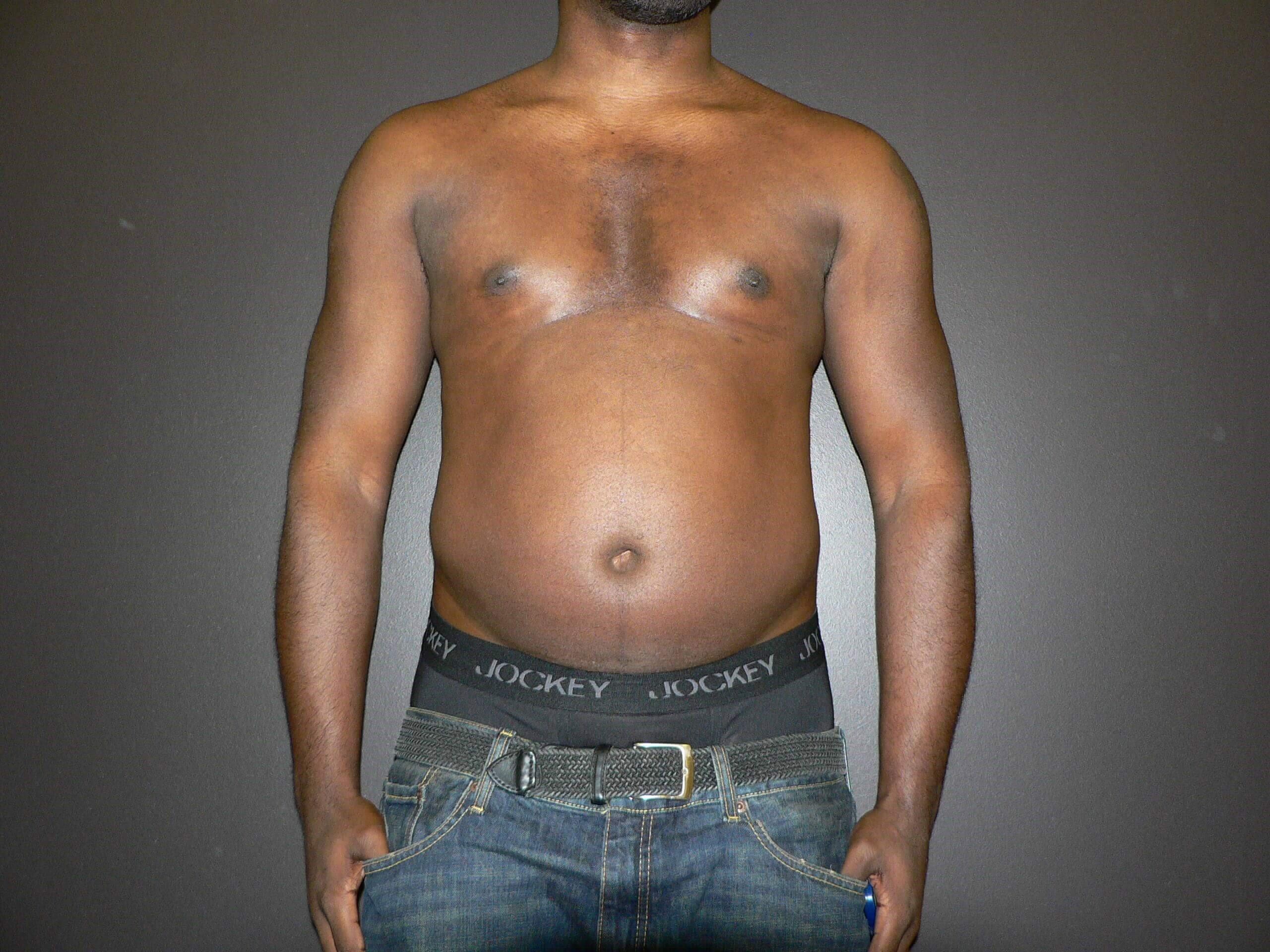 Liposuction VASER Denver Before
