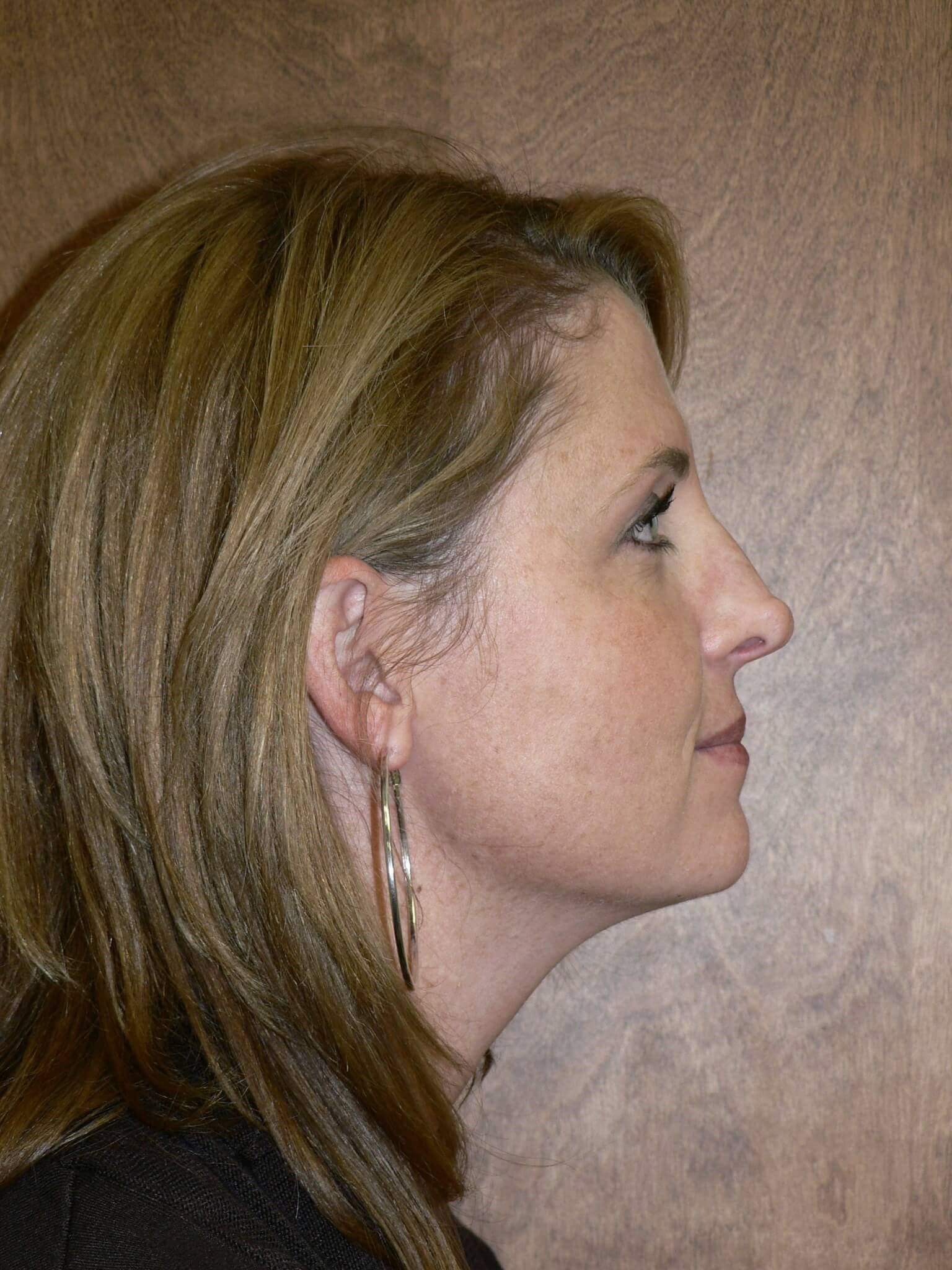 Rhinoplasty Septoplasty Denver Before