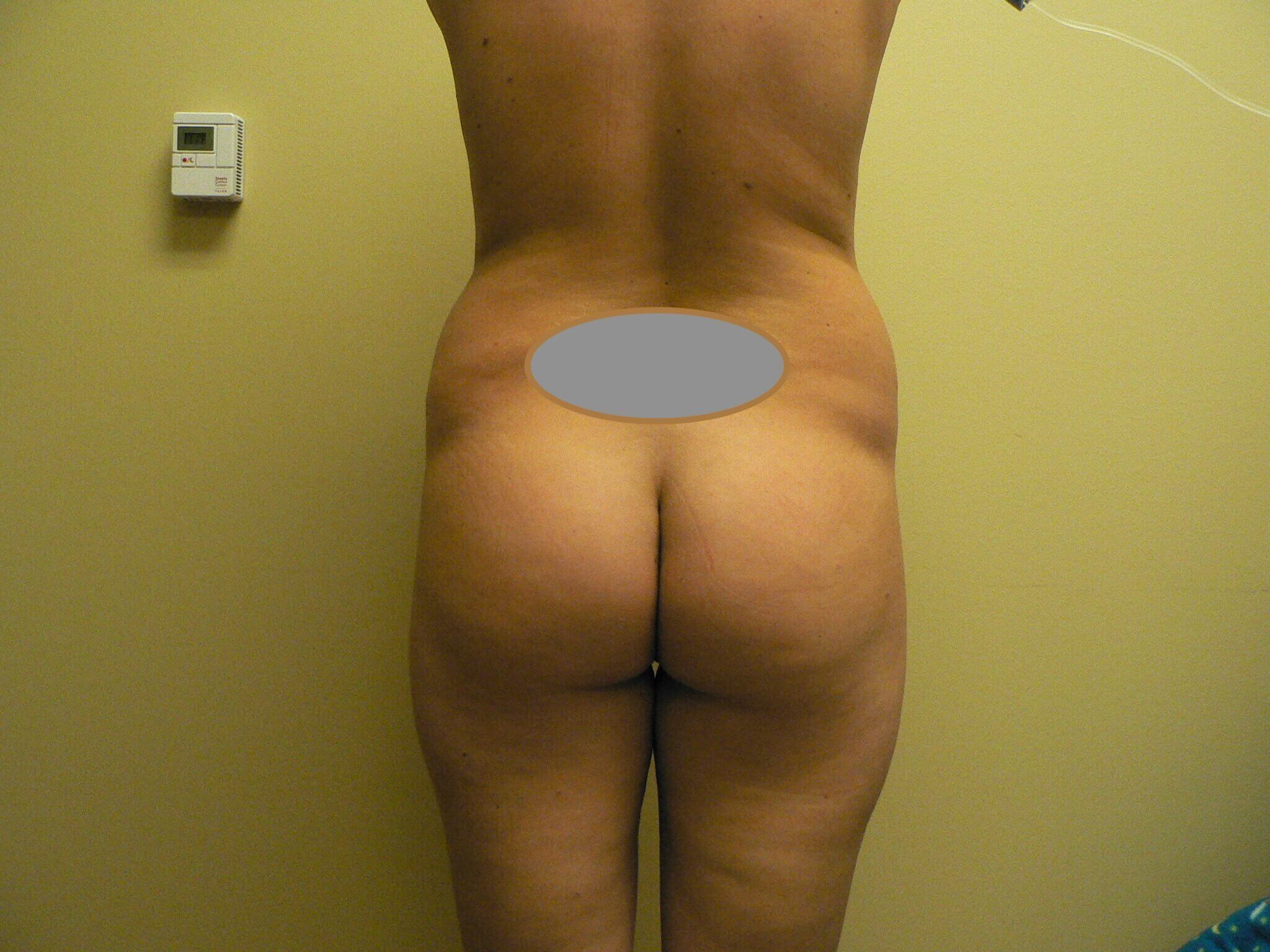 Brazilian Butt Lift Denver Before