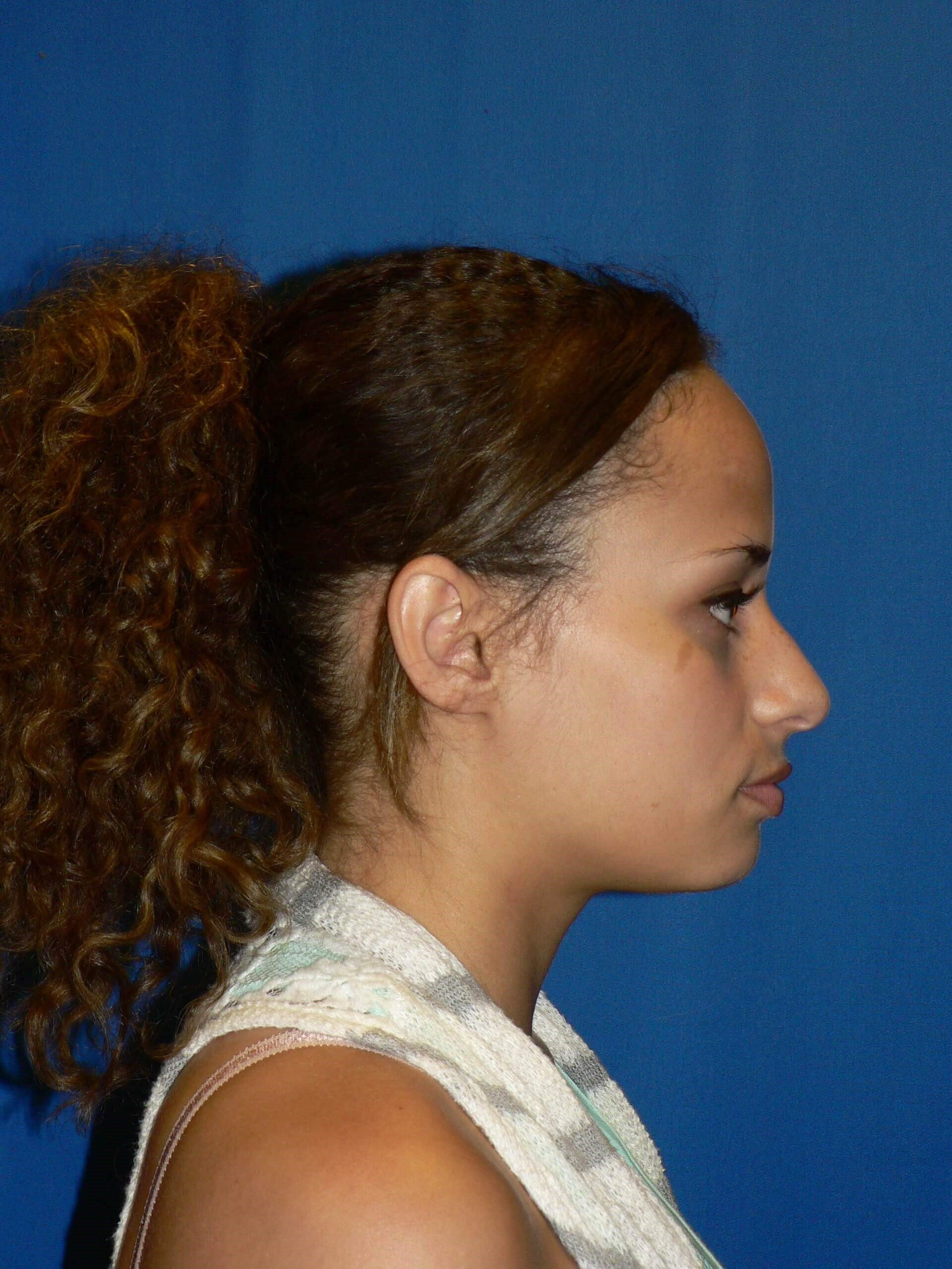 Ethnic Rhinoplasty Denver Before
