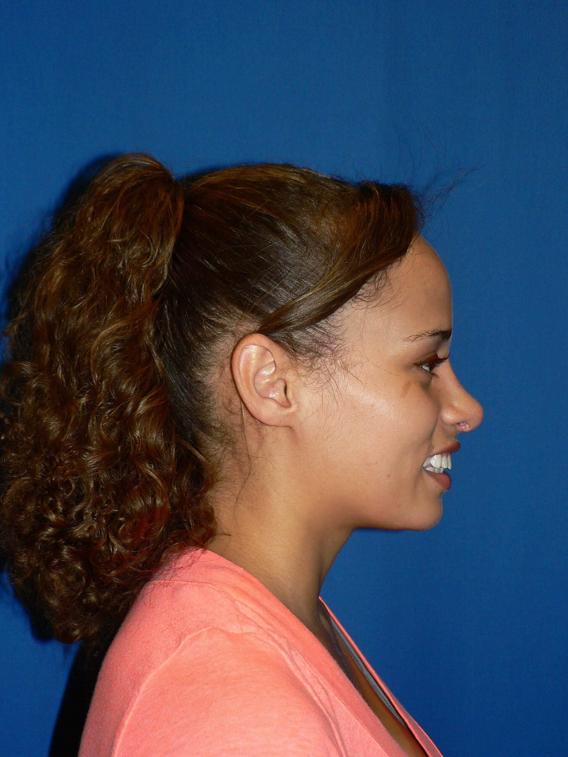 Ethnic Rhinoplasty Denver After
