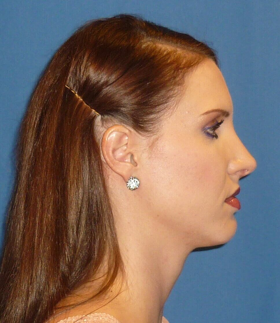 Endonasal/Closed Rhinoplasty After