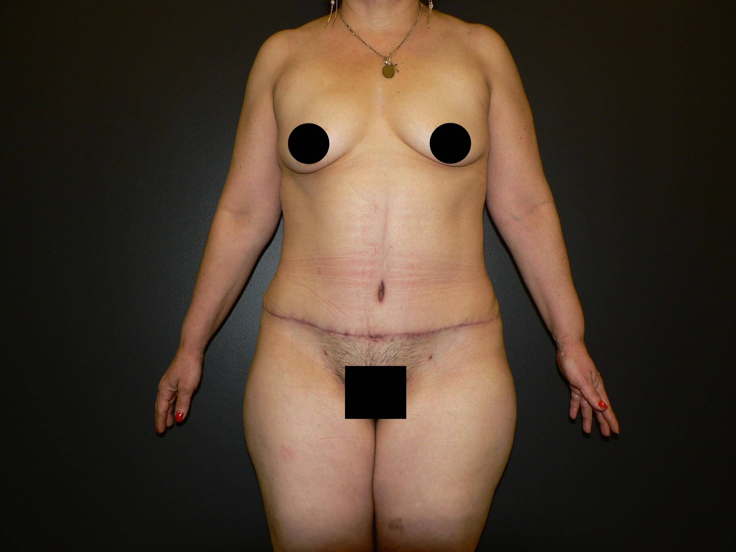 Lipo, Tummy Tuck, BBL Denver After