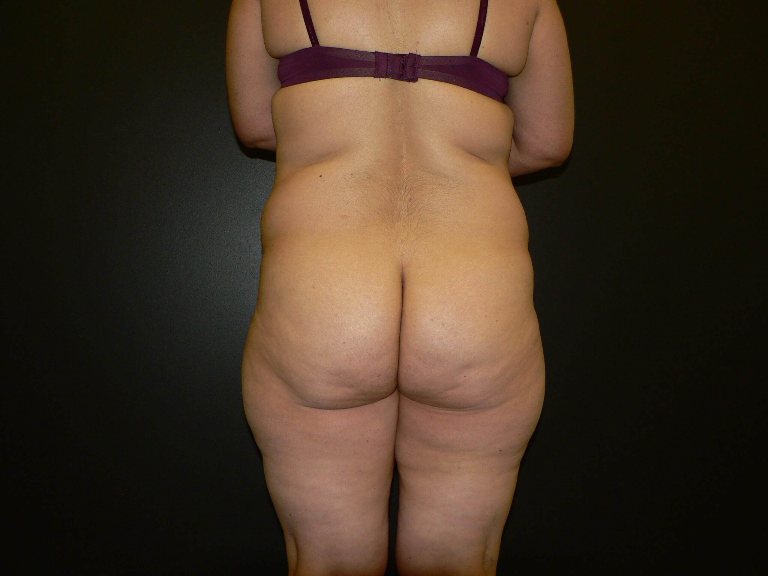 Lipo, Tummy Tuck, BBL Denver Before
