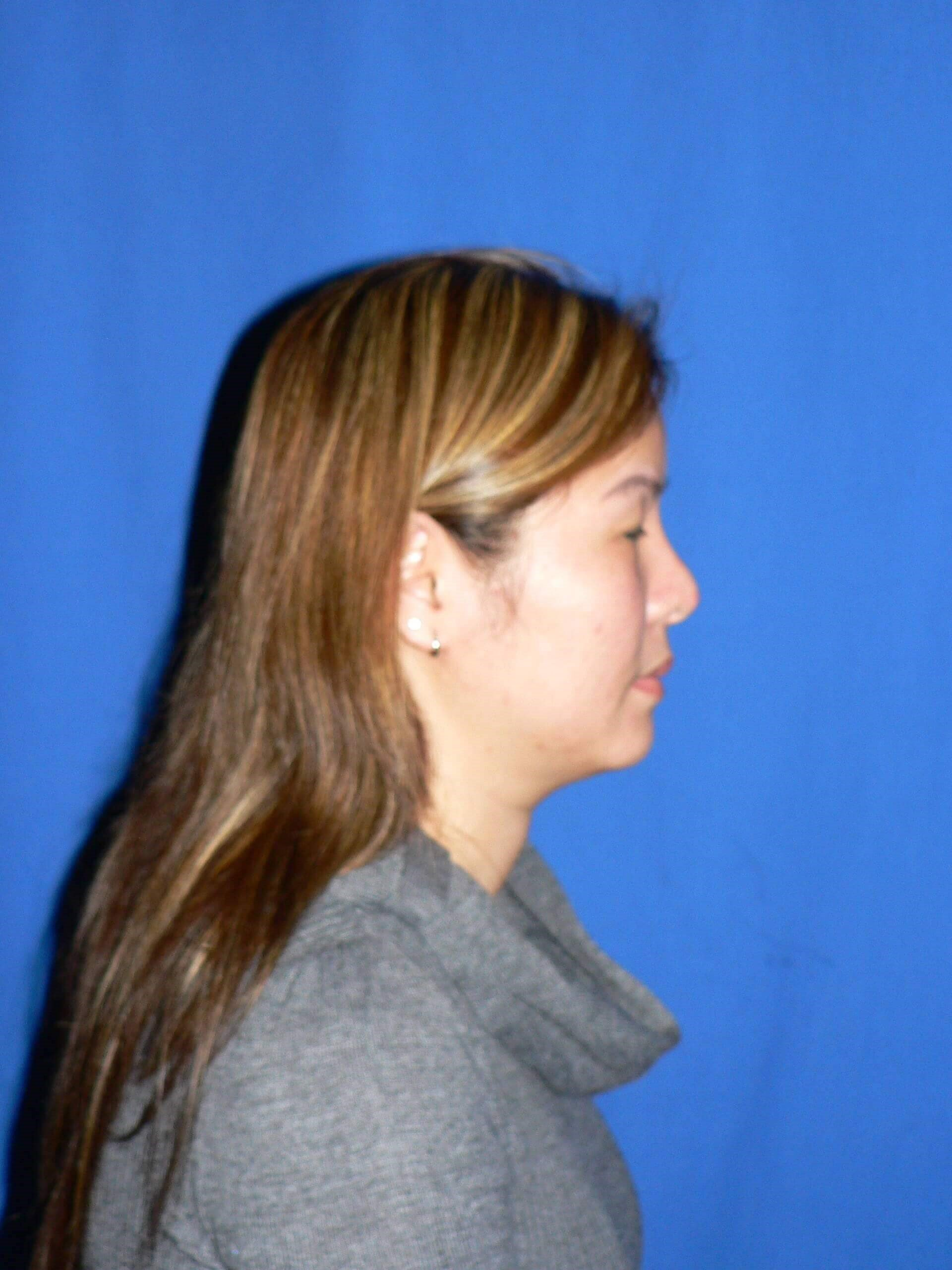Ethnic Revision Rhinoplasty Before