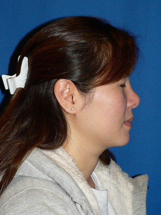 Ethnic Revision Rhinoplasty After