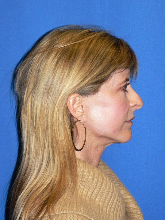 Finesse Rhinoplasty Denver Before