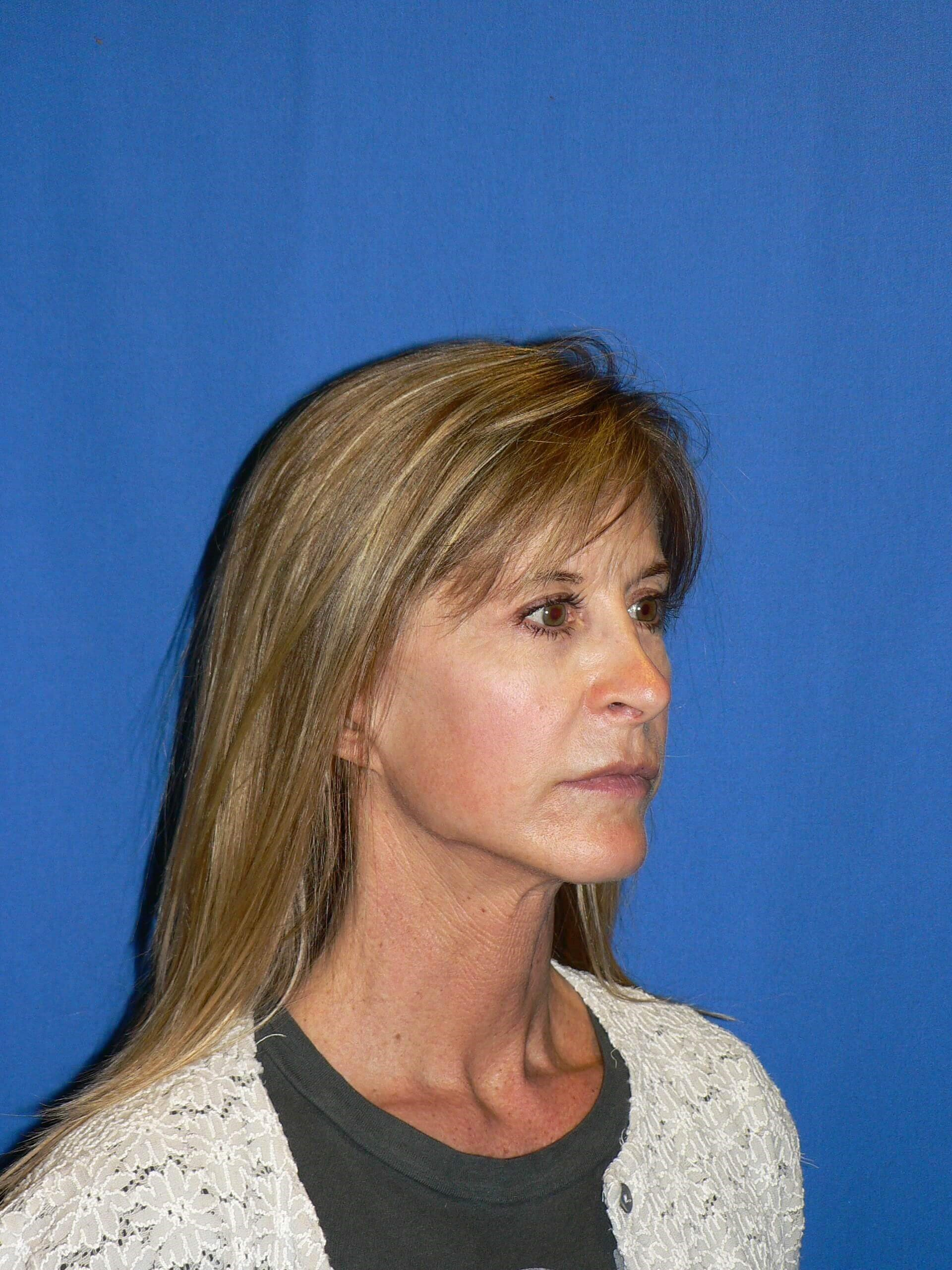 Finesse Rhinoplasty Denver After
