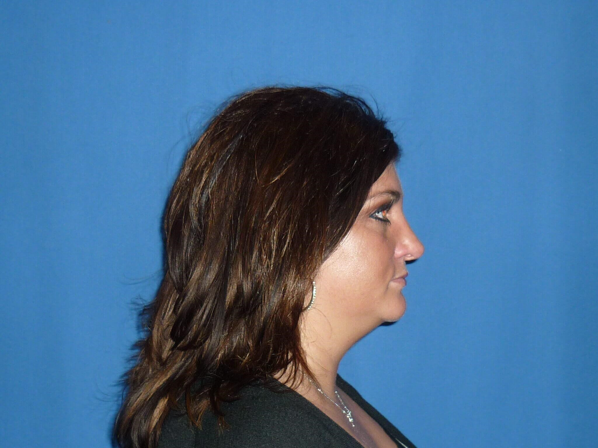 Rhinoplasty Septoplasty Denver After