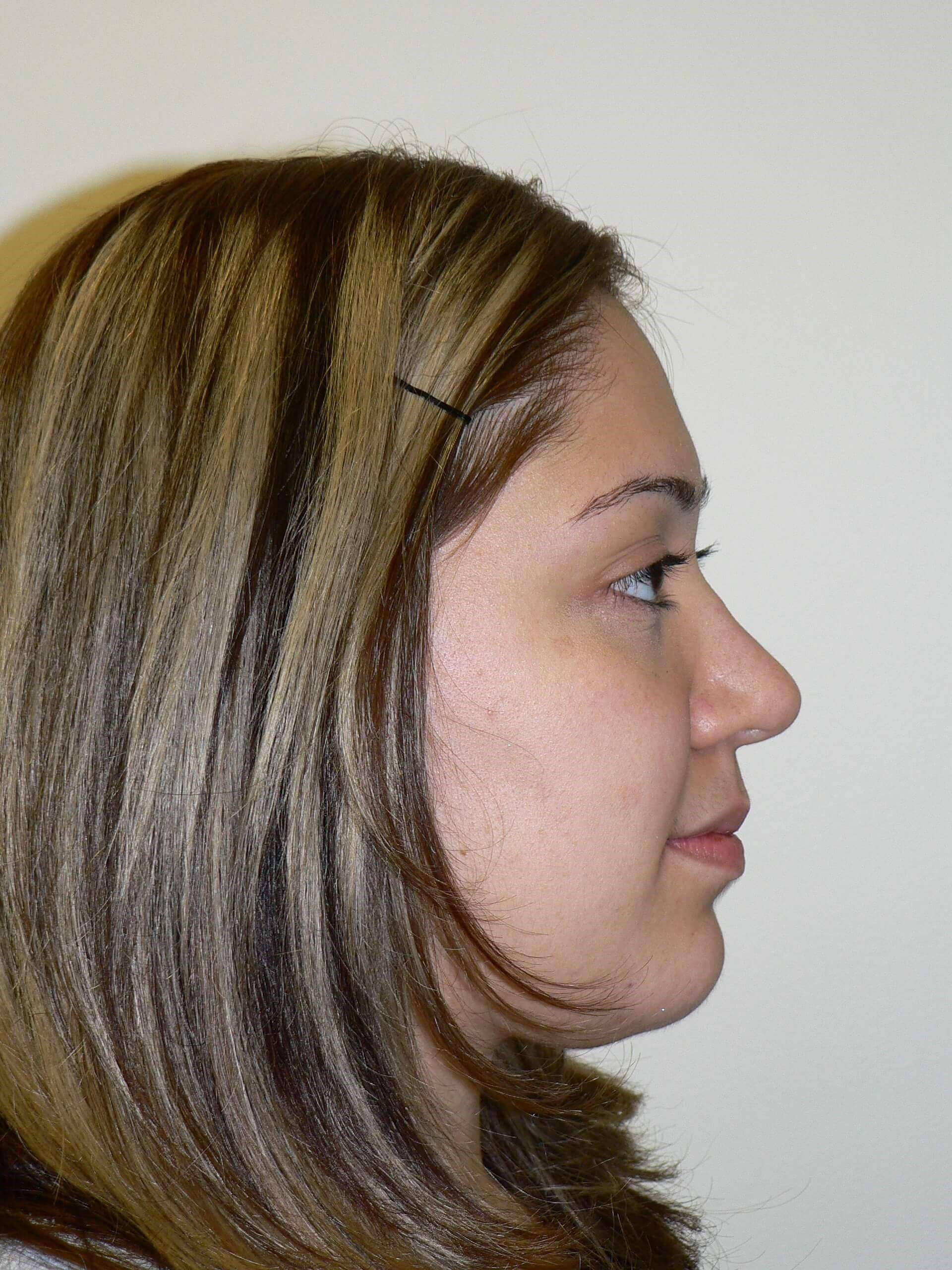 Ethnic Tip Rhinoplasty Denver After