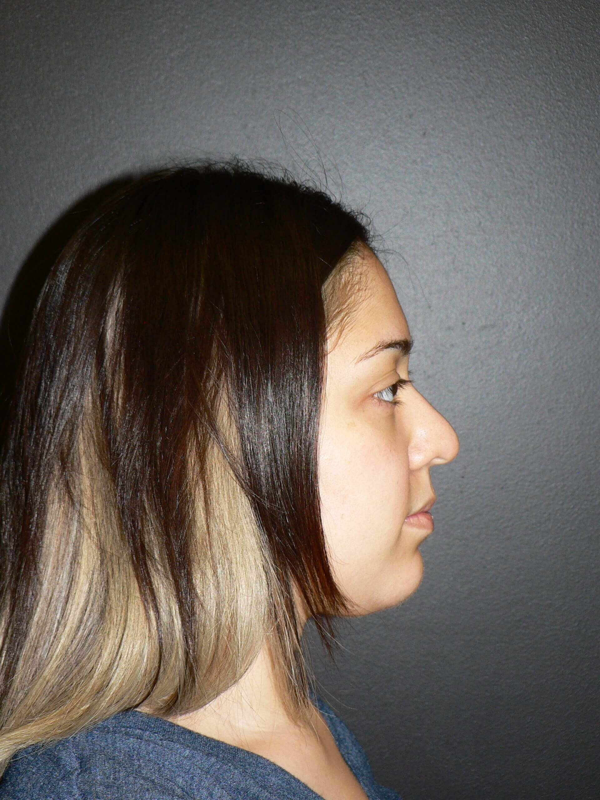 Ethnic Tip Rhinoplasty Denver Before