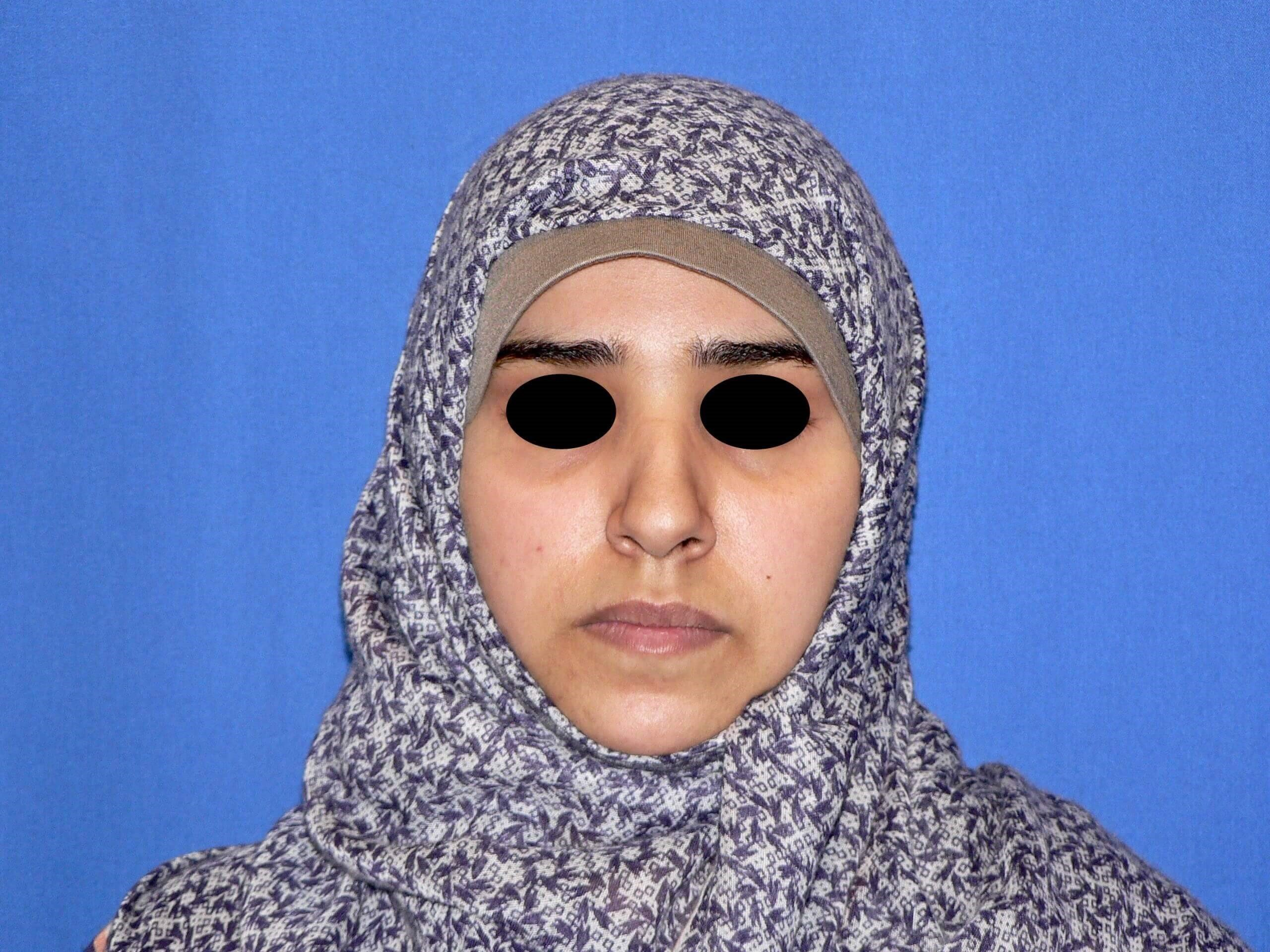 Middle Eastern Rhinoplasty Before