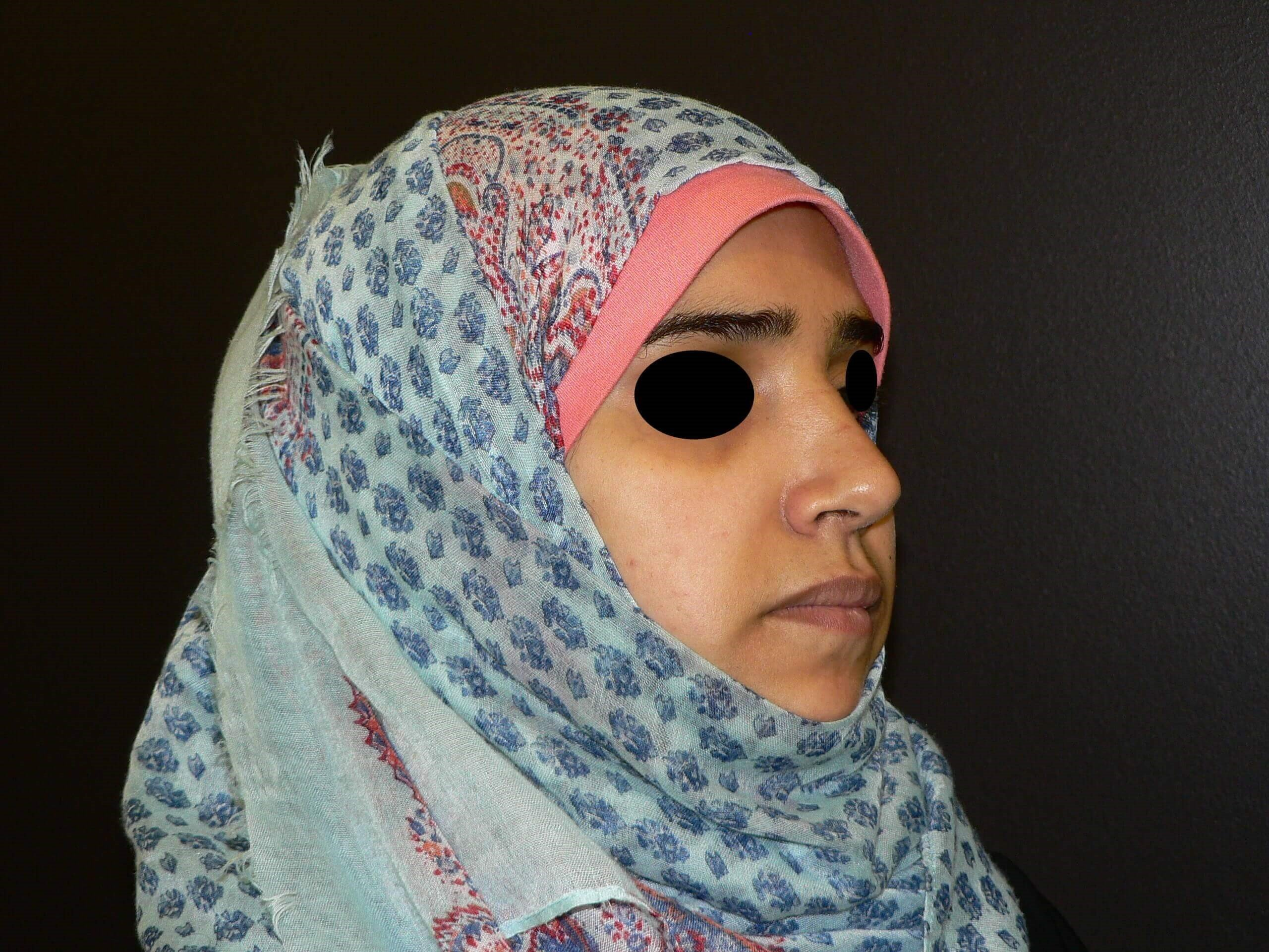 Middle Eastern Rhinoplasty After