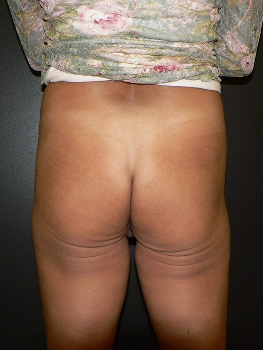 Butt Implants Denver Before
