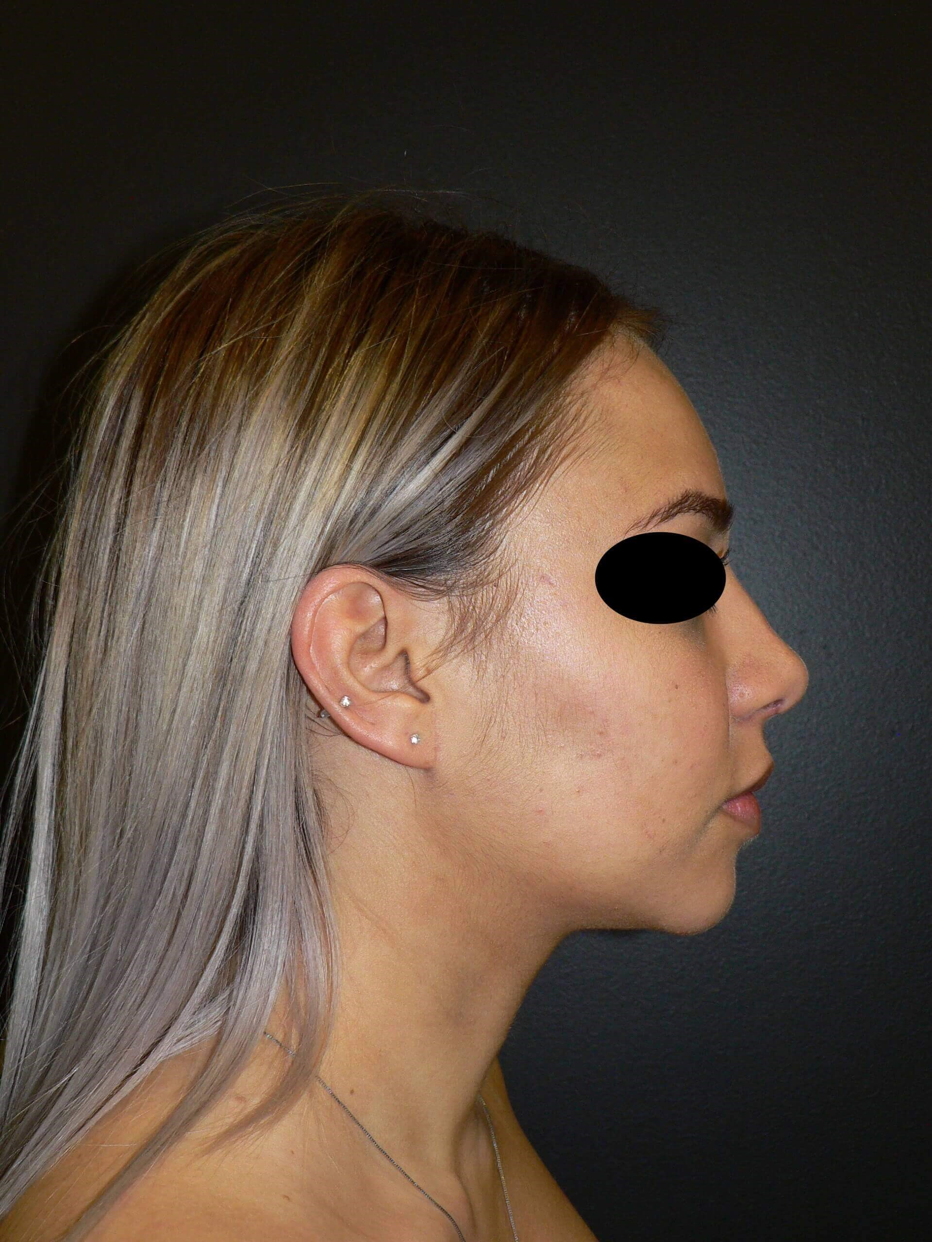 Rhinoplasty Chin Implant After
