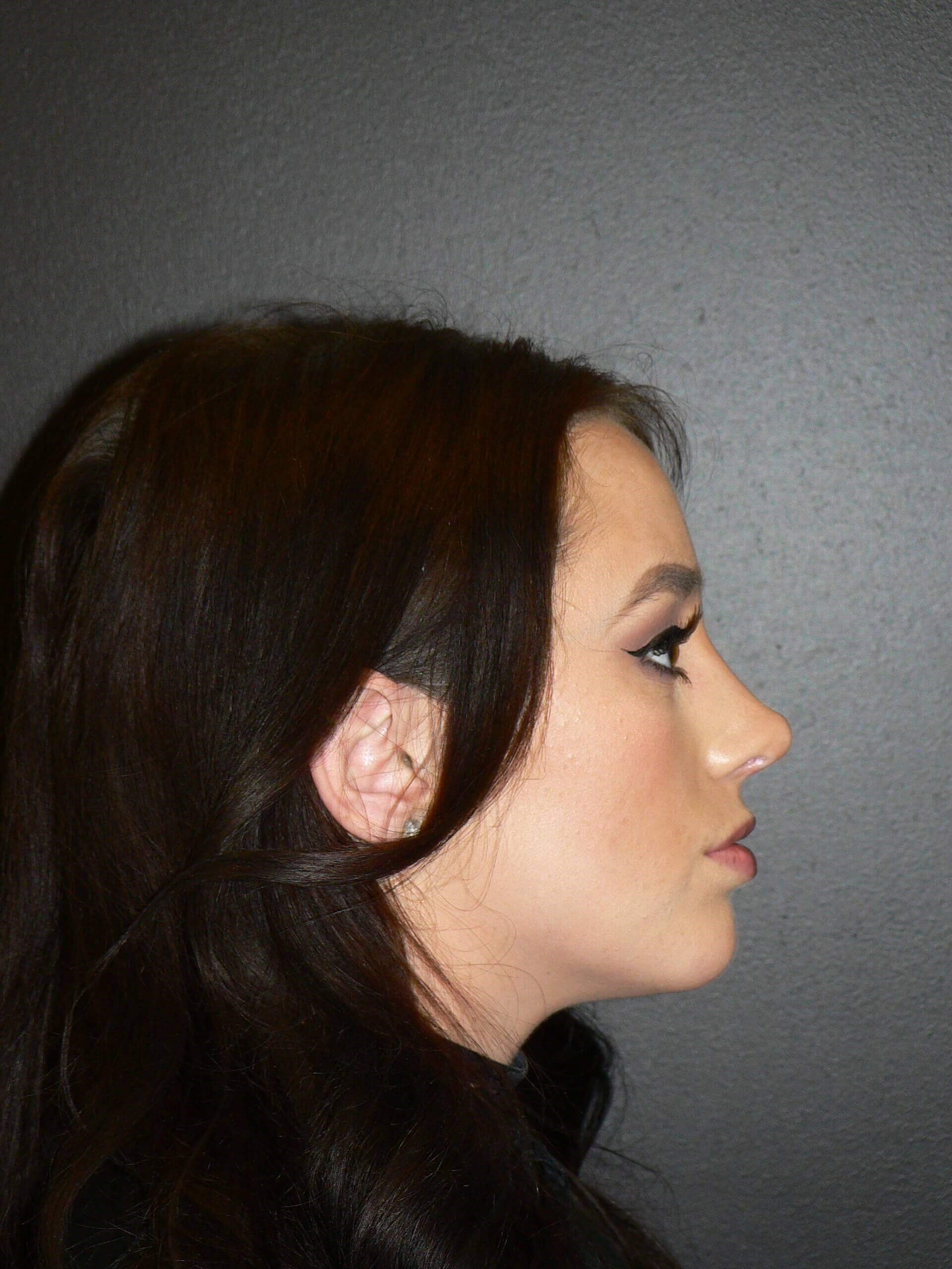 Rhinoplasty Nosejob Denver After