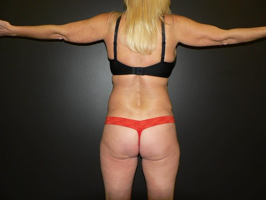 Liposuction BBL Denver Before