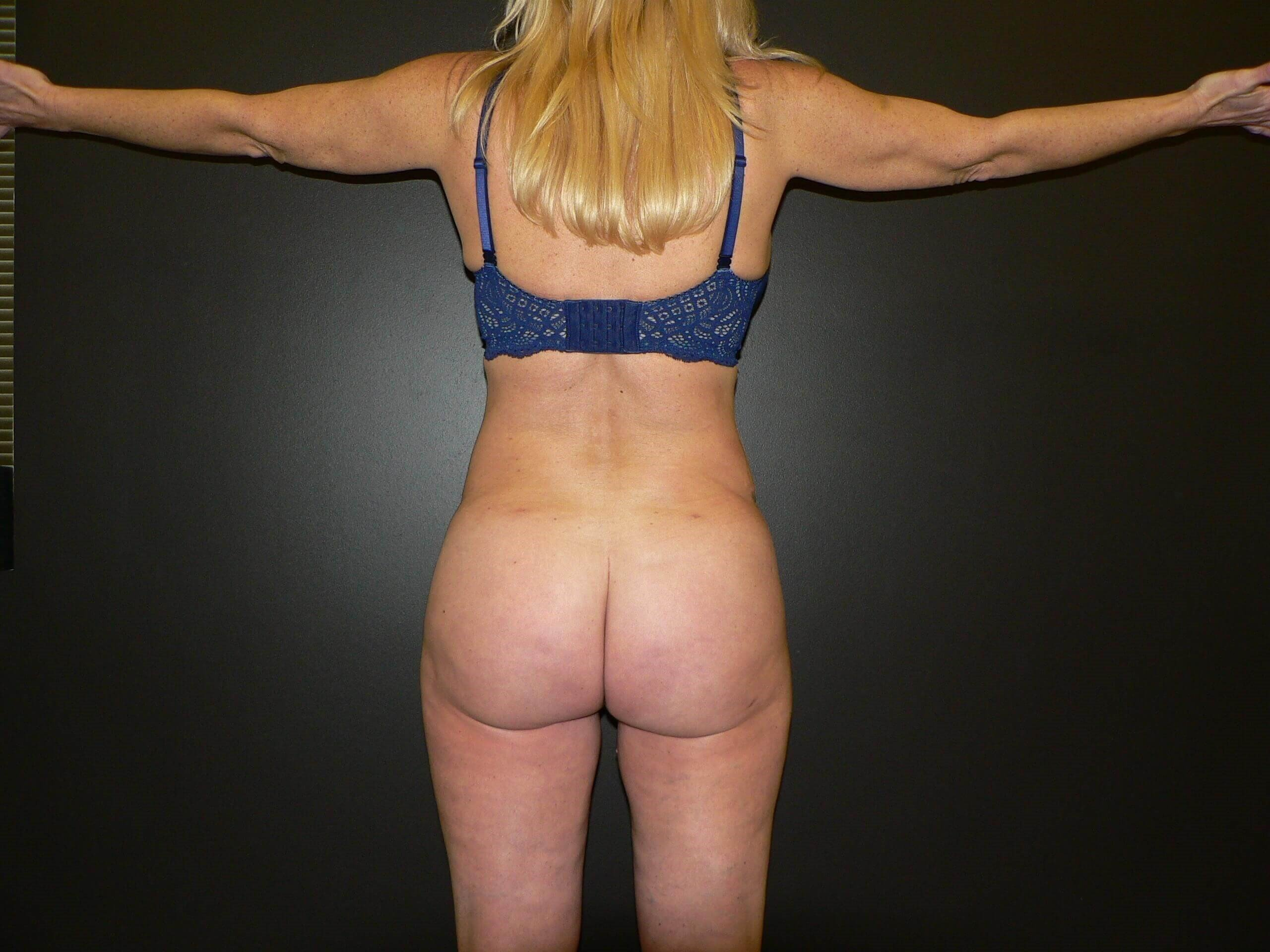 Liposuction BBL Denver After