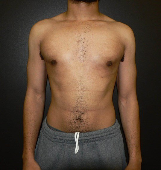 Gynecomastia surgery Denver After