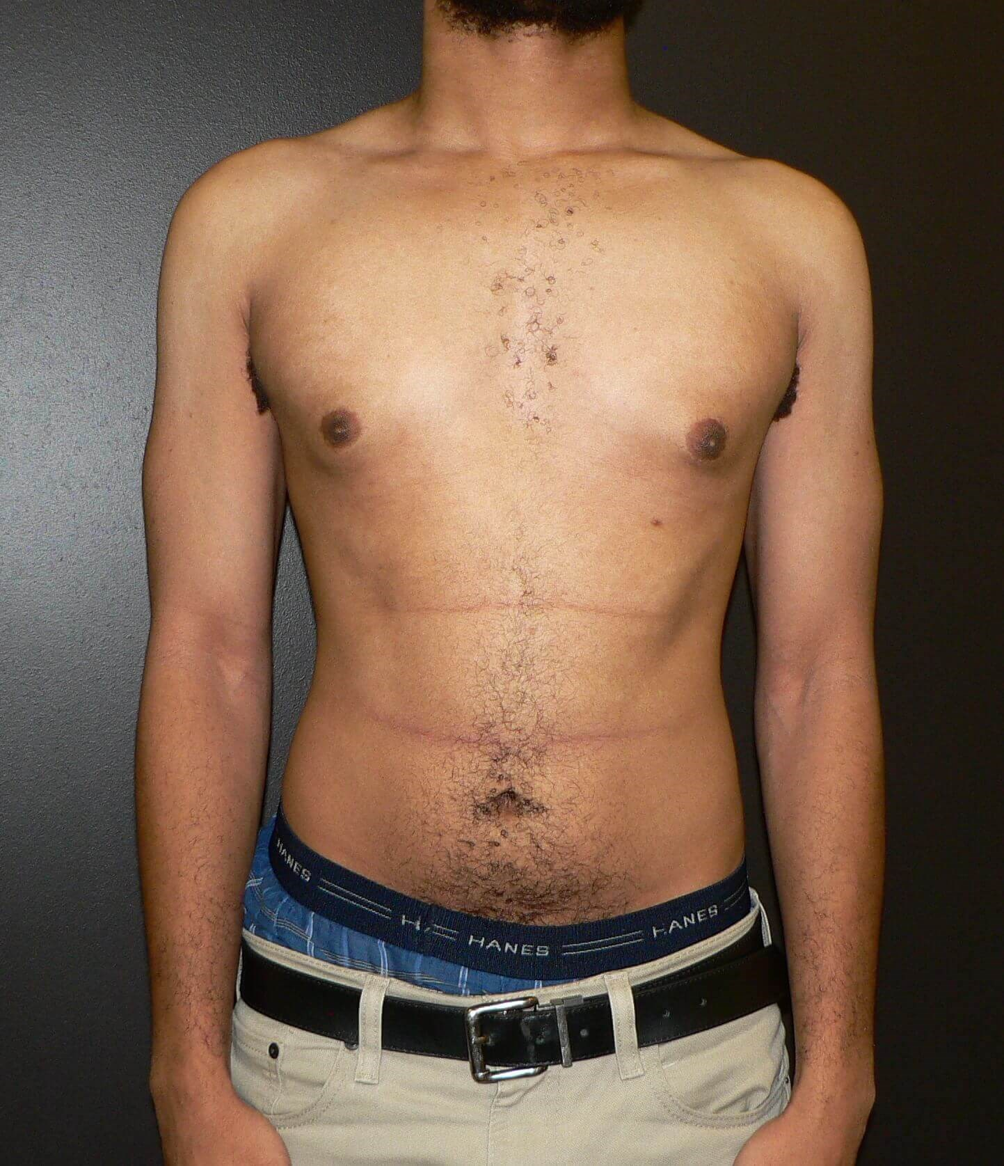 Gynecomastia surgery Denver Before