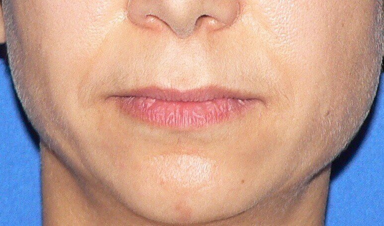 Bullhorn Lip Lift Denver Before
